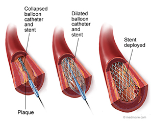 A graphic view of angioplasty